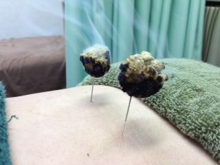 港区麻布十番じゅうばん鍼灸整骨院 | 鍼灸治療風景